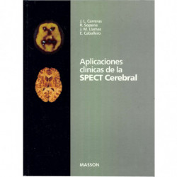APLICACIONES CLINICAS DE LA SPECT CEREBRAL